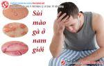 Tìm hiểu hình ảnh dấu hiệu và cách chữa bệnh sùi mào gà ở nam giới