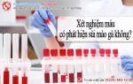 Xét nghiệm máu có phát hiện sùi mào gà không