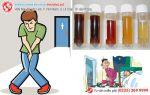viêm đường tiết niệu
