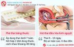 Cách phá thai 1 tuần an toàn hiện nay