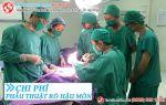 Chi phí phẫu thuật rò hậu môn là bao nhiêu?