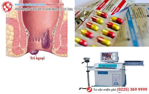 Điều trị trĩ ngoại bằng nội khoa và HCPT