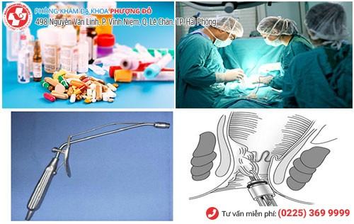 Điều trị trĩ ngoại độ 1 bằng nội khoa và thủ thuật