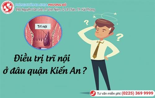 Điều trị trĩ nội ở đâu tại quận Kiến An