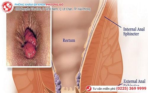 Hình ảnh bệnh lòi con trê