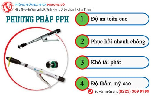 Phương pháp PPH hiện đại cắt trĩ hiệu quả