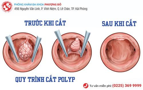 quy trình cắt polyp hậu môn