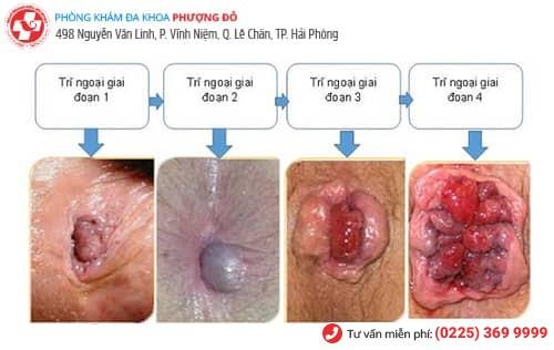 Nhận biết từng giai đoạn của bệnh trĩ ngoại qua hình ảnh