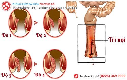 Triệu chứng bệnh trĩ nội qua các giai đoạn
