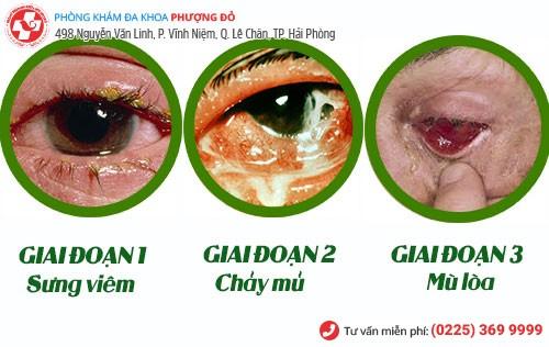 biểu hiện bệnh lậu ở mắt