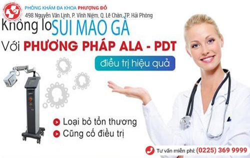 Phương pháp ALA – PDT tiên tiến điều trị sùi mào gà
