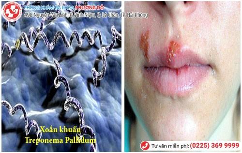 Hình ảnh bệnh giang mai ở miệng