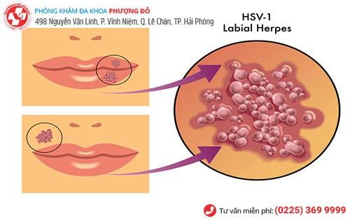 Hình ảnh virus herpes ở môi