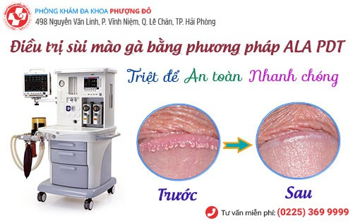 Phương pháp ALA – PDT hiện đại điều trị sùi mào gà