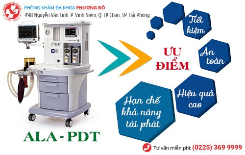 Phương pháp ALA – PDT chữa sùi mào hiện đại