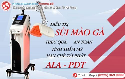 phương pháp ala pdt