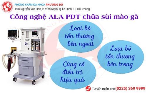 Công nghệ hiện đại ALA – PDT chữa sùi mào gà hiệu quả