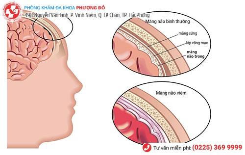 Hình ảnh bệnh viêm màng não do mụn rộp sinh dục gây ra