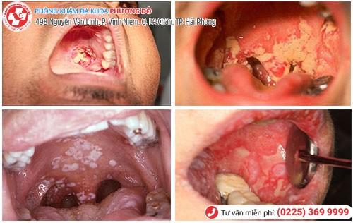 Triệu chứng bệnh lậu ở cổ họng