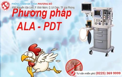 Điều trị sùi mào gà bằng phương pháp ALA-PDT