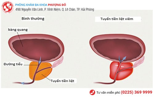 Viêm tuyến tiền liệt là bệnh lý thường gặp ở nam giới