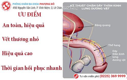 Kỹ thuật chặn dây thần kinh lưng dương vật