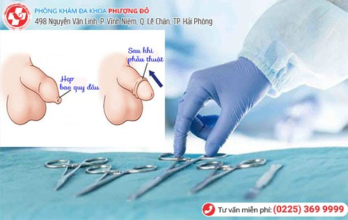 Phẫu thuật hẹp bao quy đầu ở quận dương kinh theo công nghệ Hàn Quốc