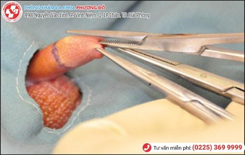 Phương pháp cắt bao quy đầu theo công nghệ Hàn Quốc