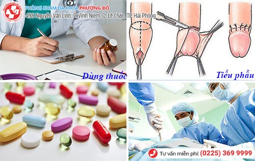 Một số phương pháp chữa các bệnh về bao quy đầu