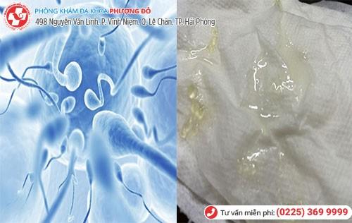 Hình ảnh tinh trùng đặc vón cục