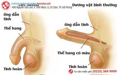 Hình ảnh bệnh liệt dương ở nam giới