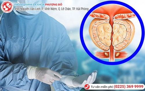 Phẫu thuật nội soi
