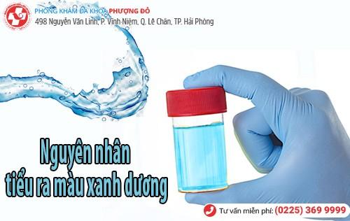 Nguyên nhân tiểu ra màu xanh dương