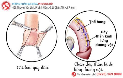 Một số phương pháp chống xuất tinh sớm