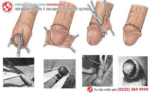 Quy trình cắt bao quy đầu bằng kỹ thuật Hàn Quốc