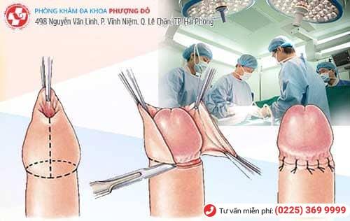 Tiểu phẫu cắt bao quy đầu là phương pháp điều trị dài bao quy đầu mức độ nặng