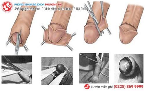 Tiểu phẫu cắt bao quy đầu nam giới