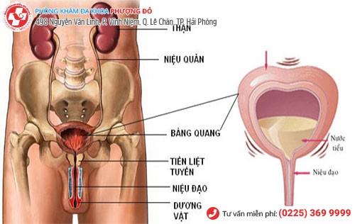 Triệu chứng viêm bàng quang ở nam giới