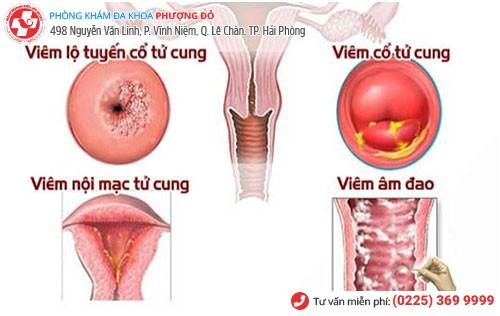 Bệnh viêm cổ tử cung gây viêm nhiễm phụ khoa