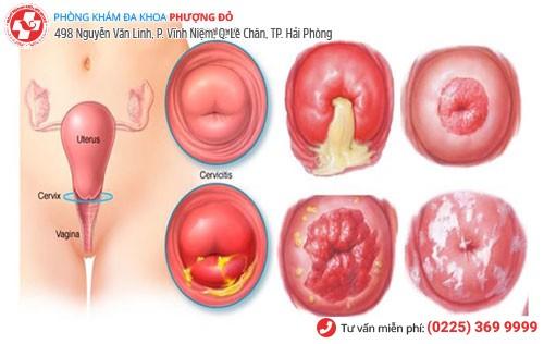 Biểu hiện viêm cổ tử cung giai đoạn mãn tính