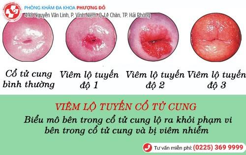 biểu hiện viêm lộ tuyến cổ tử cung