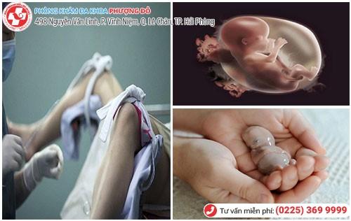 Phương pháp nạo hút thai ngoại khoa tiên tiến