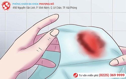 Kinh nguyệt ra ít lượng máu hơn bình thường