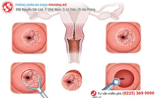 Hình ảnh bệnh nấm ở tử cung