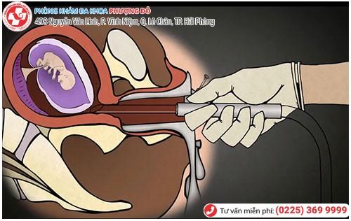 Hình ảnh nạo phá thai an toàn