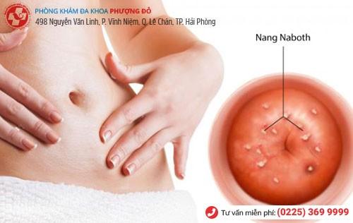 Hình ảnh nang naboth cổ tử cung