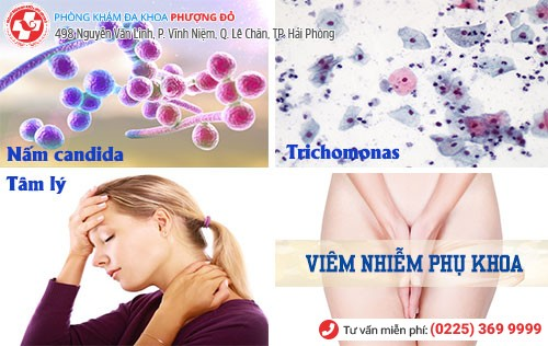 Nguyên nhân gây bệnh phụ khoa huyết trắng