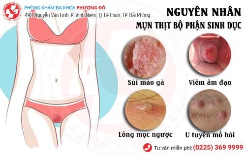 Nguyên nhân nổi mụn thịt ở bộ phận sinh dục nữ