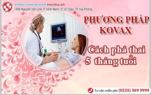 Phá thai bằng phương pháp kovax