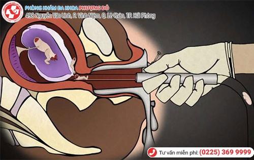 Rước họa vào thân vì tự ý phá thai
